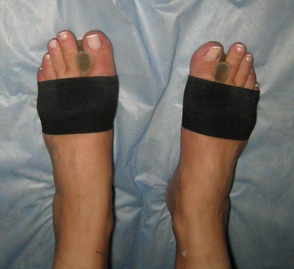 Почему растет косточка на ноге причины симптомы лечение