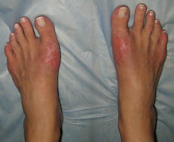 Средство от косточки на ноге - что помогает и чем вылечить