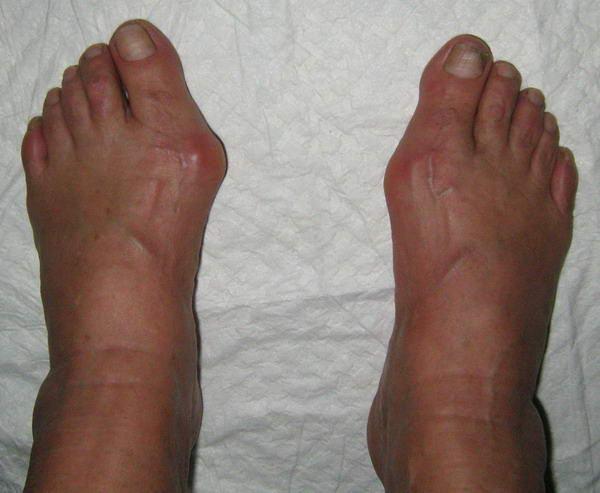 Перелом большого пальца ноги - симптомы и лечение