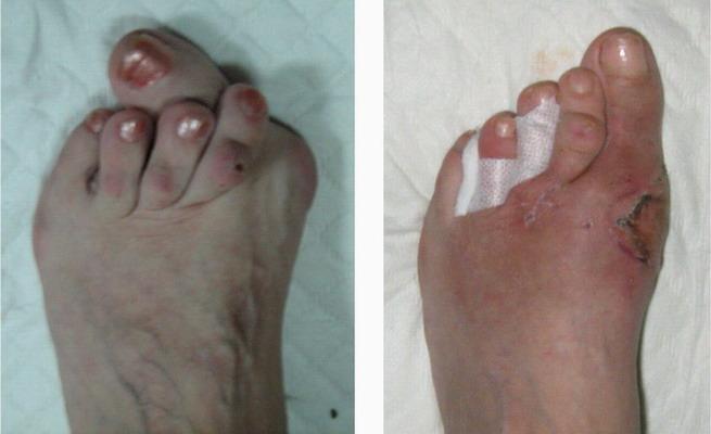 Лечение косточек на ногах с помощью средств народной медицины