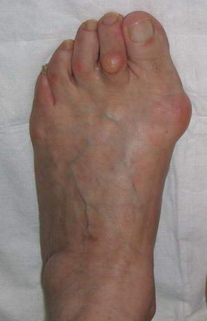 Болят косточки на большом пальце ног