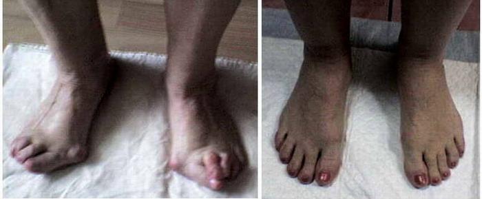 Операция на косточки на ногах отзывы