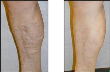 Операция на венах ног лазером отзывы