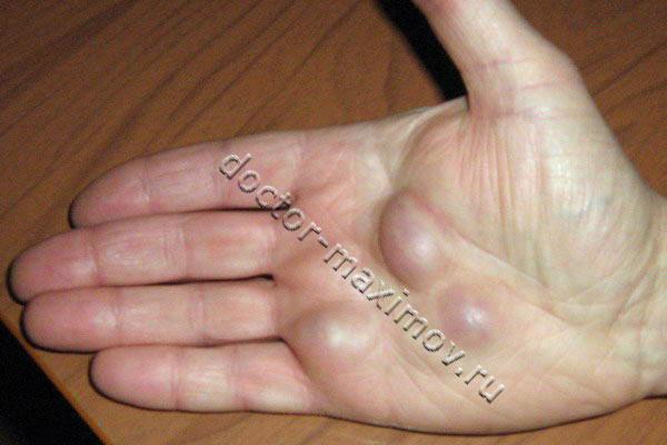 """Следствие лечения гигромы методом  """"раздавливания """" - рецидив старой..."""