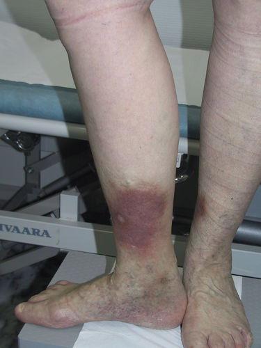 Неосложненная варикозная болезнь после постановки пиявок.  После одного сеанса гирудотерапии.